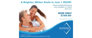 Diamond Teeth Whitening